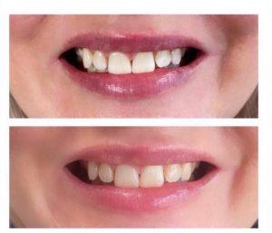Hampaidenvalkaisu